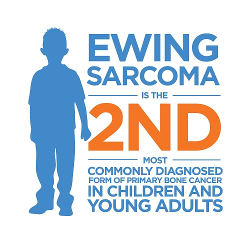 Ewing Sarcoma recorded 11.25 per million cases of sarcoma in young people globally