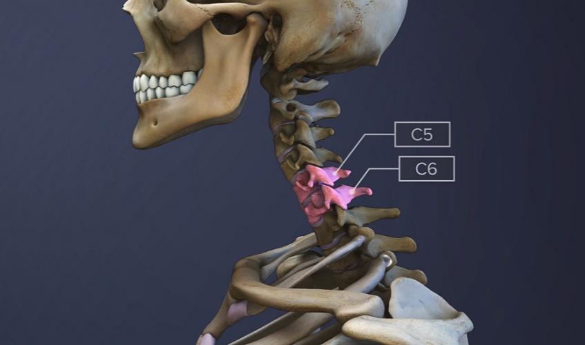 C5-C6-spinal-motion-segment