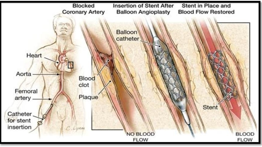 Insertion of Stent After Balloon Angioplasty