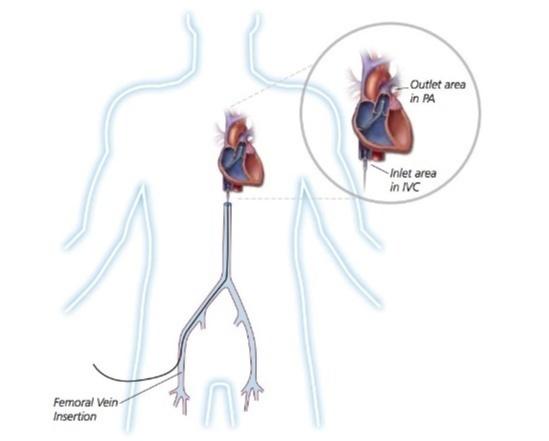 Axillary Injection of Impella